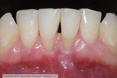 Is It Time To Retire The Free Gingival Graft Procedure In Light Of New Alternative Tissue Grafting Materials Perio Implant Advisory