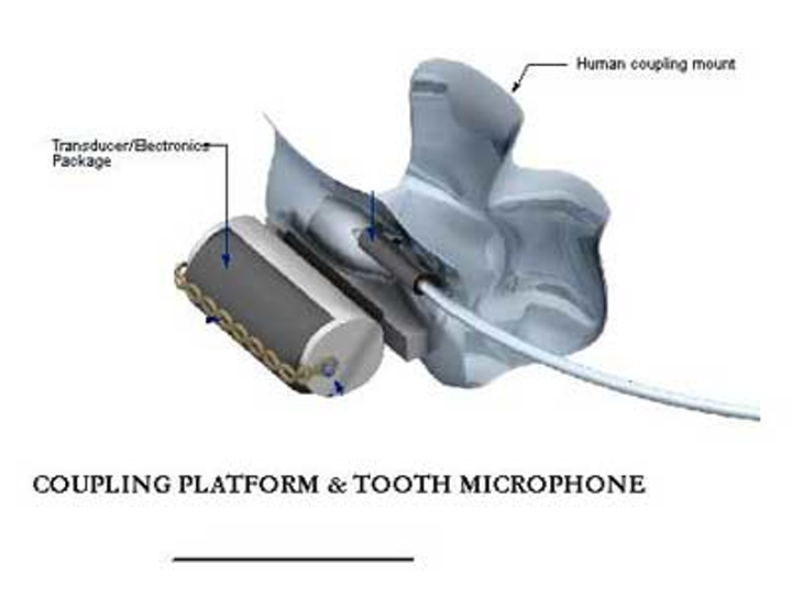Toothmicrophone