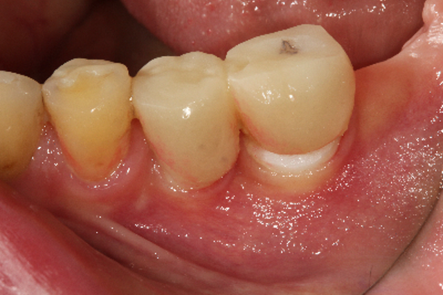 Top 5 sources of dental implant pain when 'there is nothing