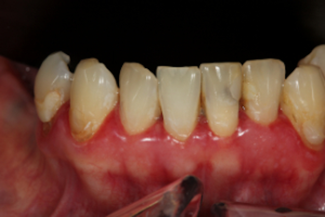 Top causes of gingival enlargement and treatment options