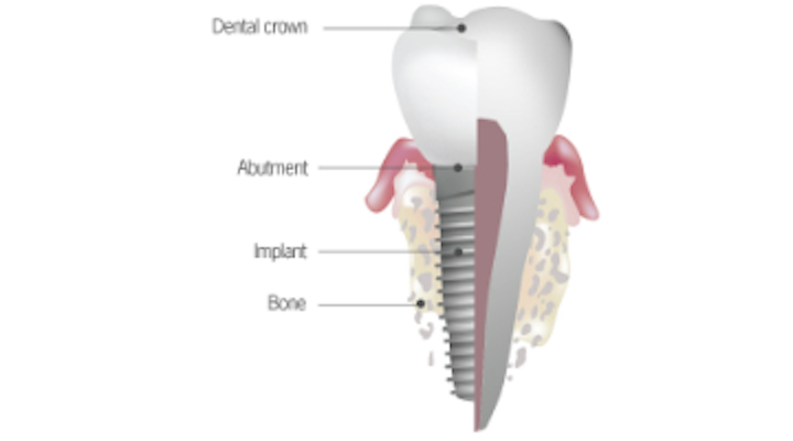 Top 5 anatomical differences between dental implants and teeth that