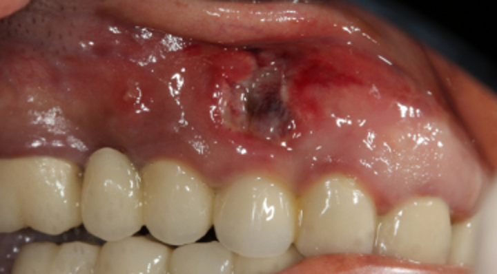 Sinus grafting: How to manage complications involving the maxillary