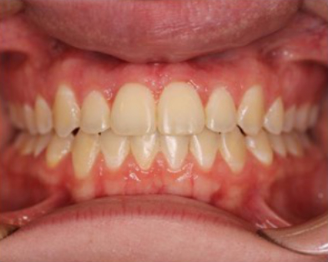 The perils of do-it-yourself dentistry: A case study | Perio