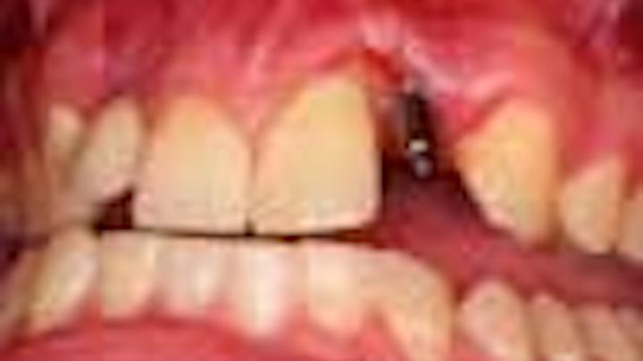Content Dam Diq Online Articles 2014 11 Kephart Implant Thumbnail