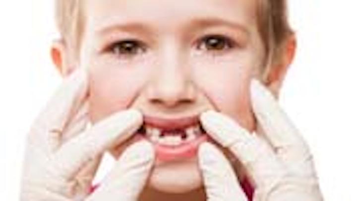 Content Dam Diq Online Articles 2015 04 Missing Teeth Thumbnail