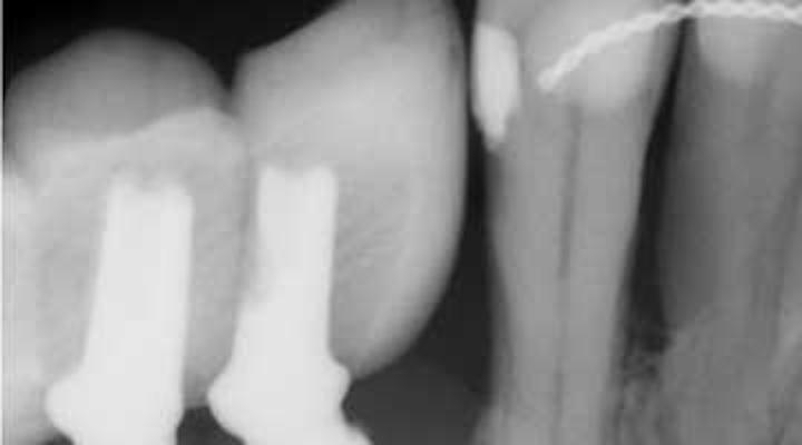 Understanding and managing peri-implant bone loss   Perio-Implant