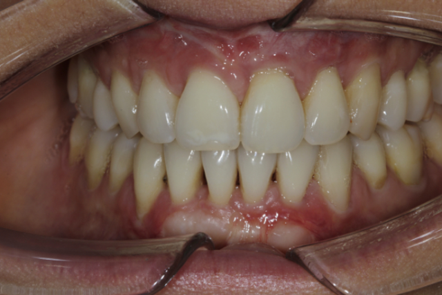 Considerations when using veneers to fabricate a perfect