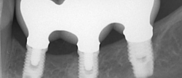 Content Dam Sr En Articles 2019 01 To Splint Or Not To Splint Adjacent Implants A 10 Year Retrospective Analysis Leftcolumn Article Thumbnailimage File