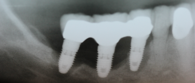 Radiograph of an implant cluster failure